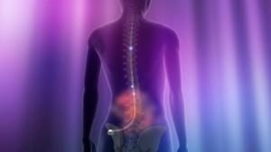 Peripheral Neuropathy - Spinal Cord Stimuation