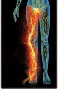 CRPS - one symptom is limbs on fire