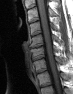 Degenerative Disc Disorder MRI