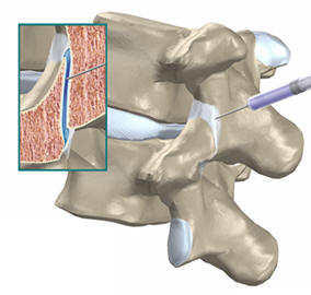 Thoracic Facet Joint Injection