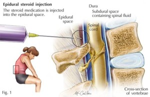 Transforaminal Epidural Steroid Injection