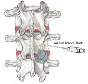 Medial Branch Block