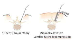 Lumbar Microdecompression