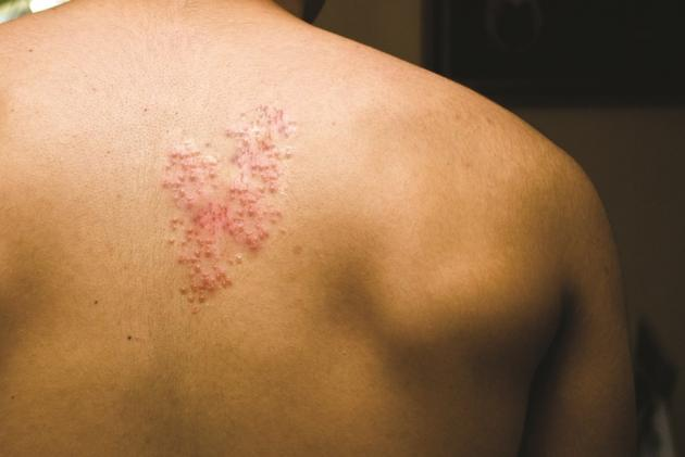 Shingles Pain Cause Discovered Dr Michael A Castillo Md