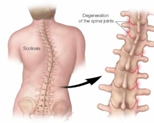 Types Of Scoliosis Dr Michael A Castillo Md