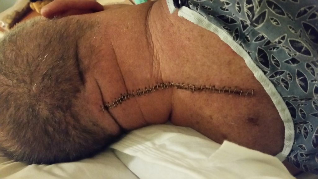back pain from surgery